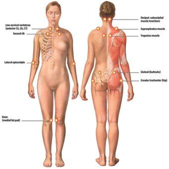 fibromyalgia diagnosis restore 3